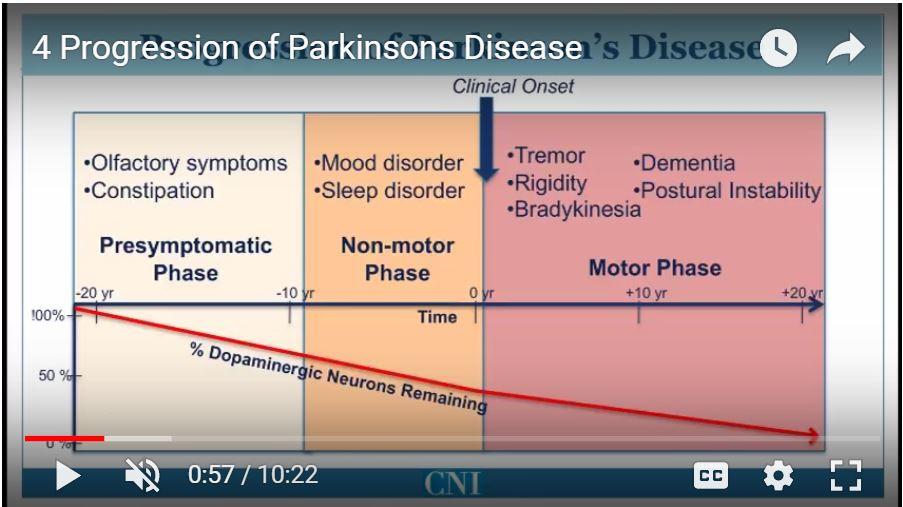 Parkinsons Disease Progression >> 4 Progression Of Parkinson S Disease Rocky Mountain Movement